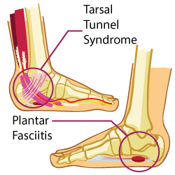 What is Plantar Fasciitis and the Tarsal Tunnel Syndrome