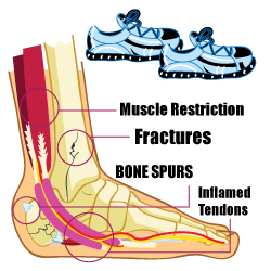 Starting point of Plantar Fasciitis and Tarsal Tunnel Syndrome