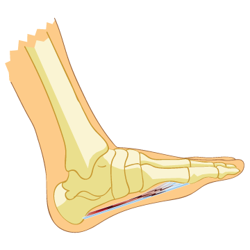 What is Plantar Fasciosis?